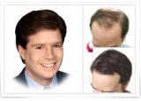 Toupee[Hair Piece Wig][BONA TRADING CO.]
