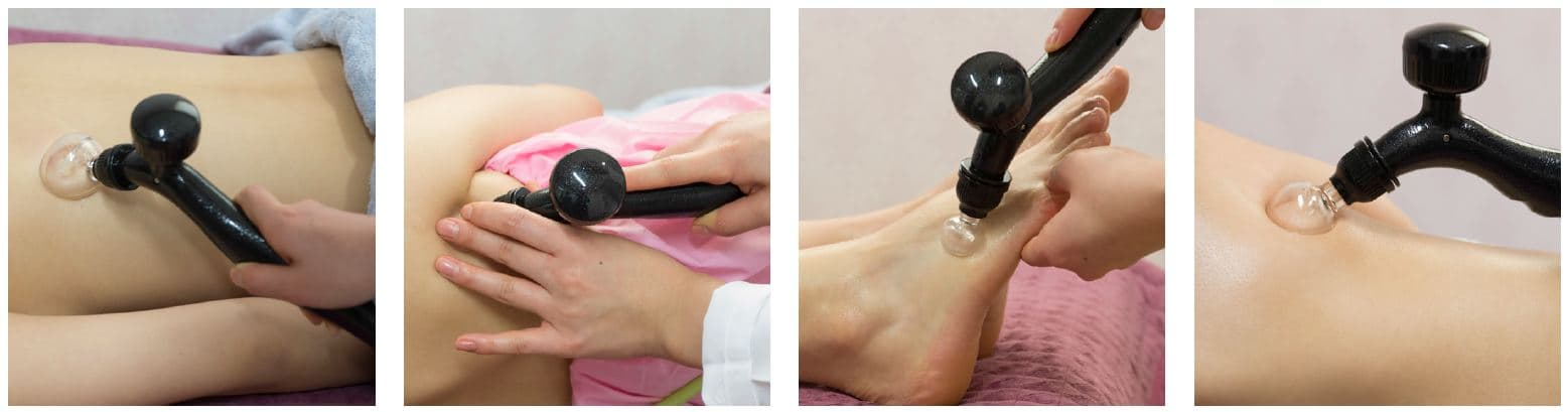 Electric Suction Massage System SD1S Combined Use for Cupping