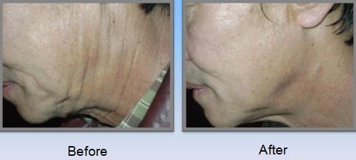 Visceral fat Subcutaneous fat Removal RF Device / FDA, CE ...  Visceral fat Su...
