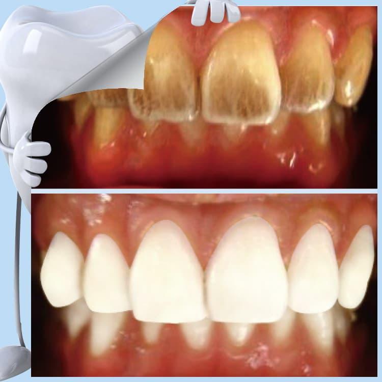 Как от никотина отбелить зубы в домашних условиях 372