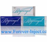 Reyoungel
