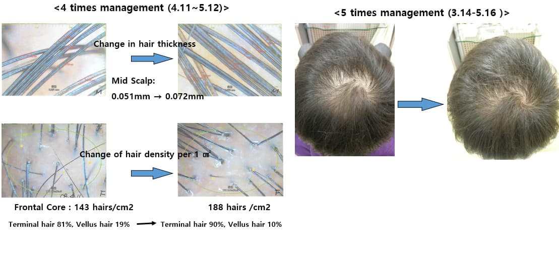 CYTOKINES-8, Scalp treatment, Growth factor with ...